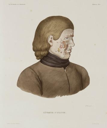 Female leper, Iceland, early 19th century.