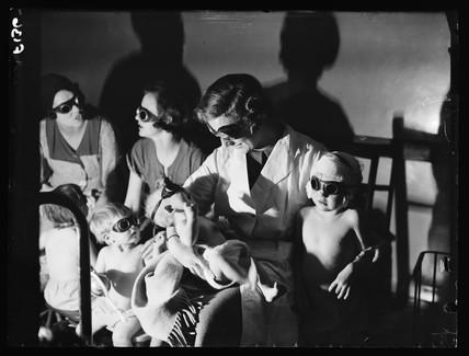 'Sunray' treatment, 1936.