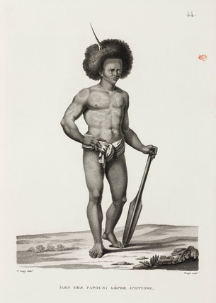 Man with Ichthyosis, 'Island of the Papuans', 1817-1820.