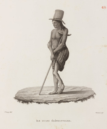 Man with elephantiasis, Guam, 1817-1820.