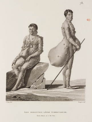 Tubercular leprosy sufferers, Mariana Islands, 1817-1820.