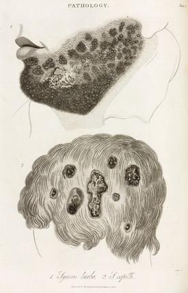 Skin diseases, 1822.