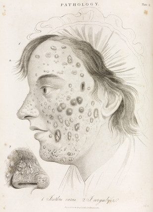 Two types of skin disease, 1822.