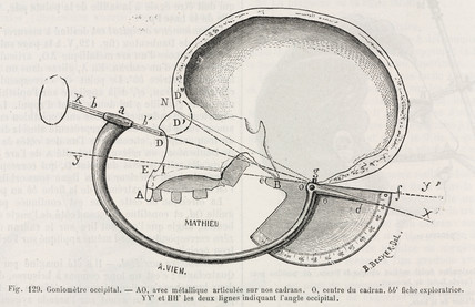 Occipital goniometer, 1883.
