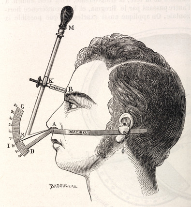 Measurement of the head and face, 1883.