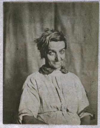 Portrait of a patient, Surrey County Asylum, c 1852.