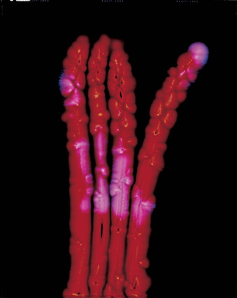 Kirlian photograph of asparagus.
