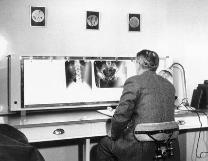 Studying x-rays at Charterhouse Rheumatism Clinic in London, March 1955.