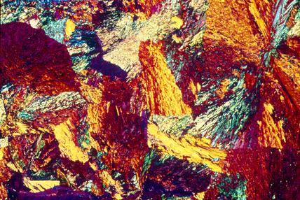 Aluminium bronze. Light micrograph in cross