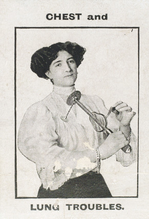 Using the 'Veedee' vibratory massager for chest problems, c 1900-1925.