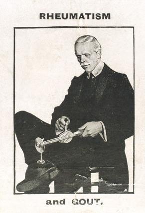Using the 'Veedee' vibratory massager for rheumatism, c 1900-1925.
