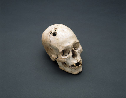 Bronze Age skull, Jericho, Palestine, 2200-2000 BC.