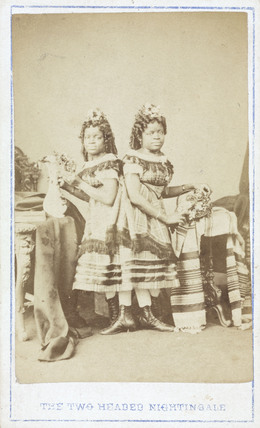 Christine and Millie McKay, American conjoined twins, c 1870s.