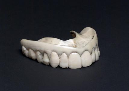 Full upper denture, 1801-1860.
