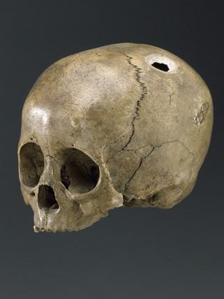 Trephined human skull.
