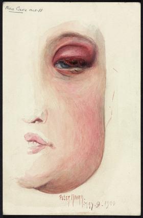 Diseased eyelid, 1900.