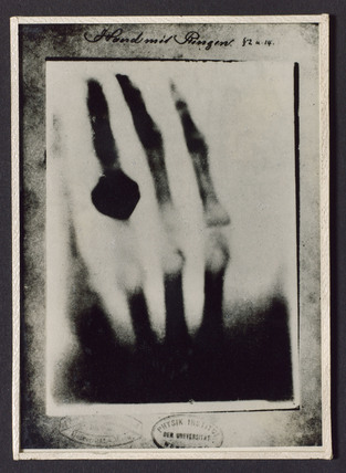 Radiograph of a hand with a ring, 1895.