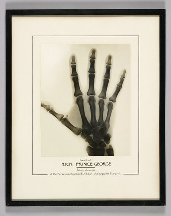 X-ray of the right hand of Prince George, 1932.