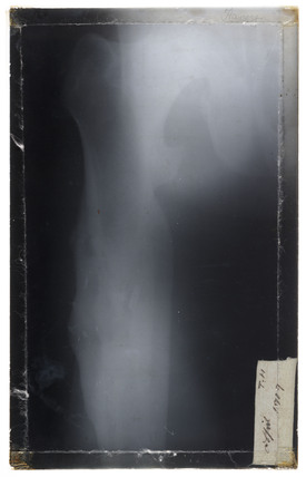 X-ray plate, 1919.
