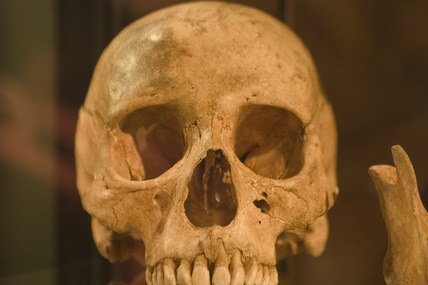 Skull showing the effects of leprosy, Denmark, c 1350.