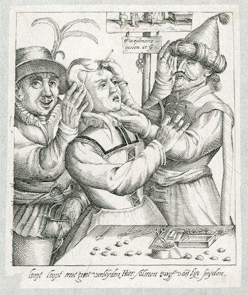 Operation for Stones in the Head', Netherlands, 17th century.