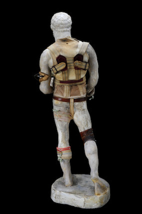 Plaster figure wearing orthopaedic appliances, England, 1860-1910.