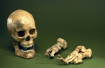 Skull and foot bones from a leper.