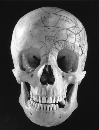 Phrenological head made from a skull, 1815-1900.