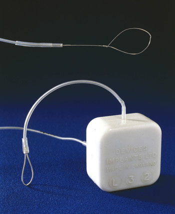 St George's implantable axilla cardiac pacemaker, English, 1967.