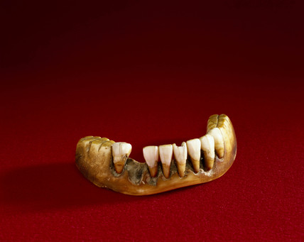 Full lower denture, English, 1801-1860.