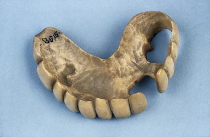 Partial upper denture, 1820-1870.