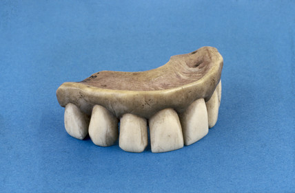 Partial upper denture, mid 19th century.