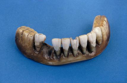 Full lower denture, 1801-1860.