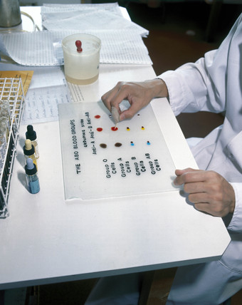 Testing for blood group, 1980.
