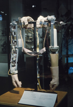 Thalidomide prosthetic arms, early 1960s.