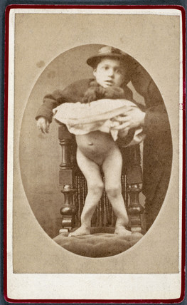 Child with rickets, 1870-1910.