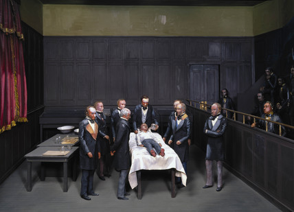 The first operation using anaesthesia, 1846.