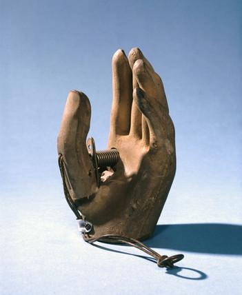 Prosthetic hand, 1979-1981.