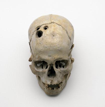 Trepanned Bronze Age skull, 2200-2000 BC.