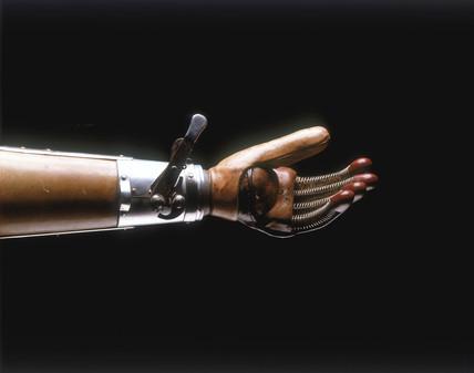 Artificial arm, 1920-1925.