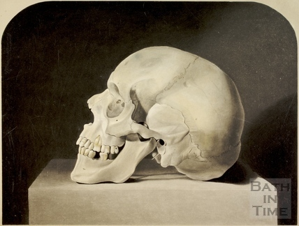Side view of ancient skull from a stone coffin found in Bath in 1852